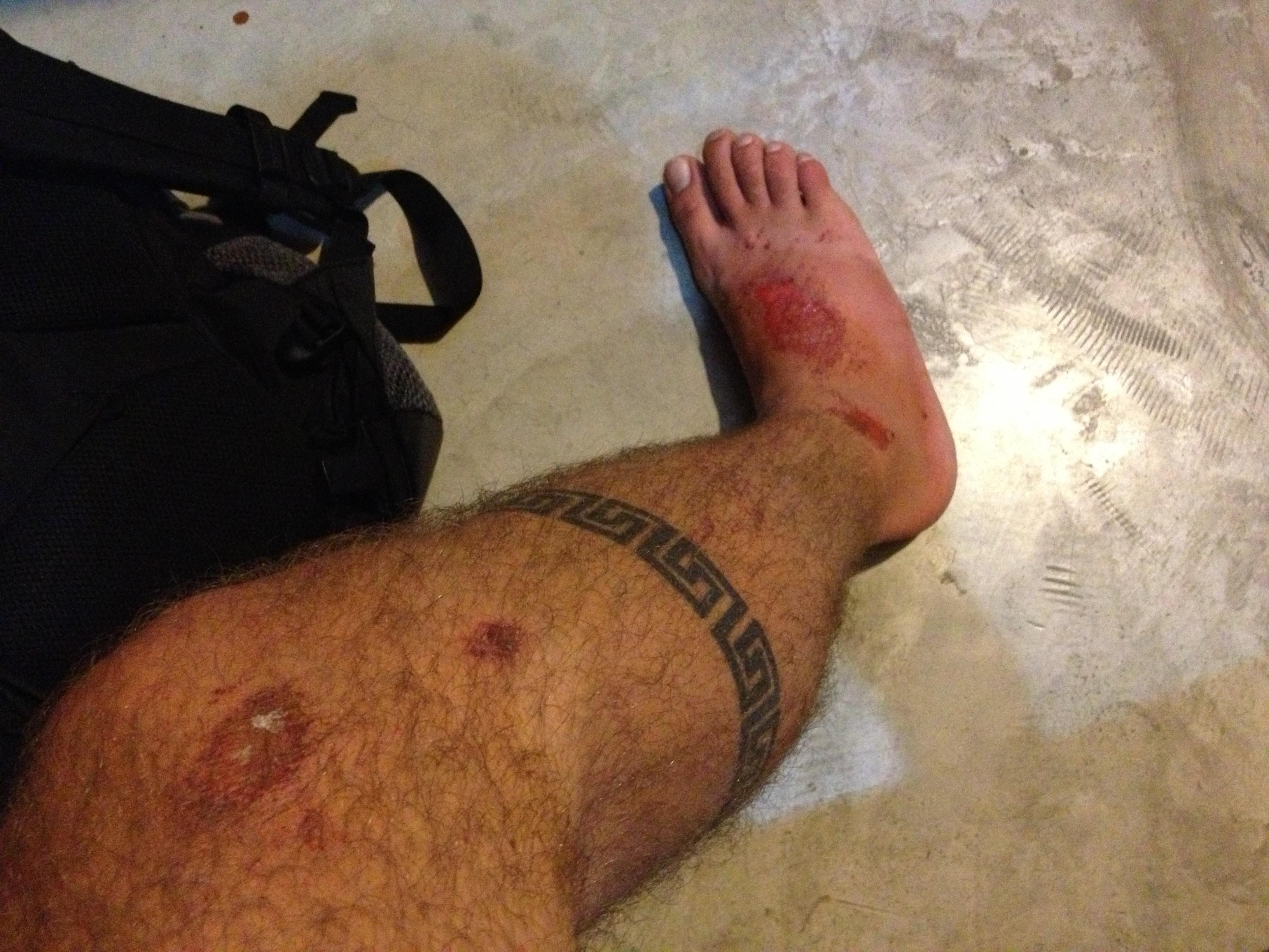 cuts on leg