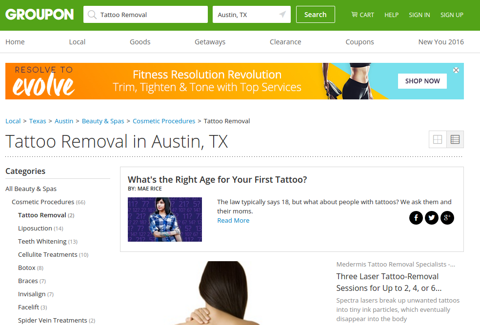 tattoo removal austin